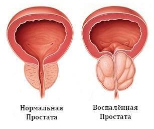 Апитерапия— точки ужаливания при грыже позвоночника, при варикозе, при рассеянном склерозе