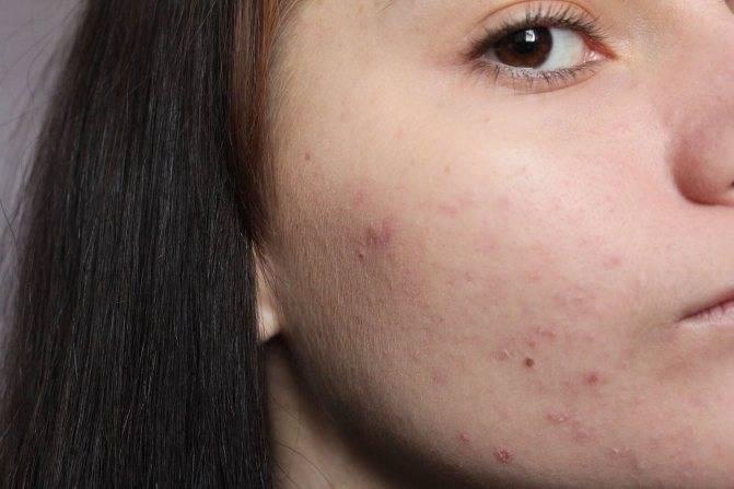 Жирный лоб причины у женщин, что делать. жирная кожа на лбу: что делать?