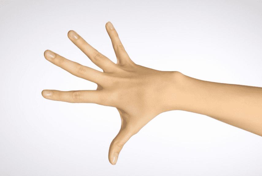 Причины появления, лечение и профилактика прыщей на руках