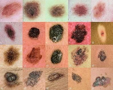 Меланома – что за болезнь?
