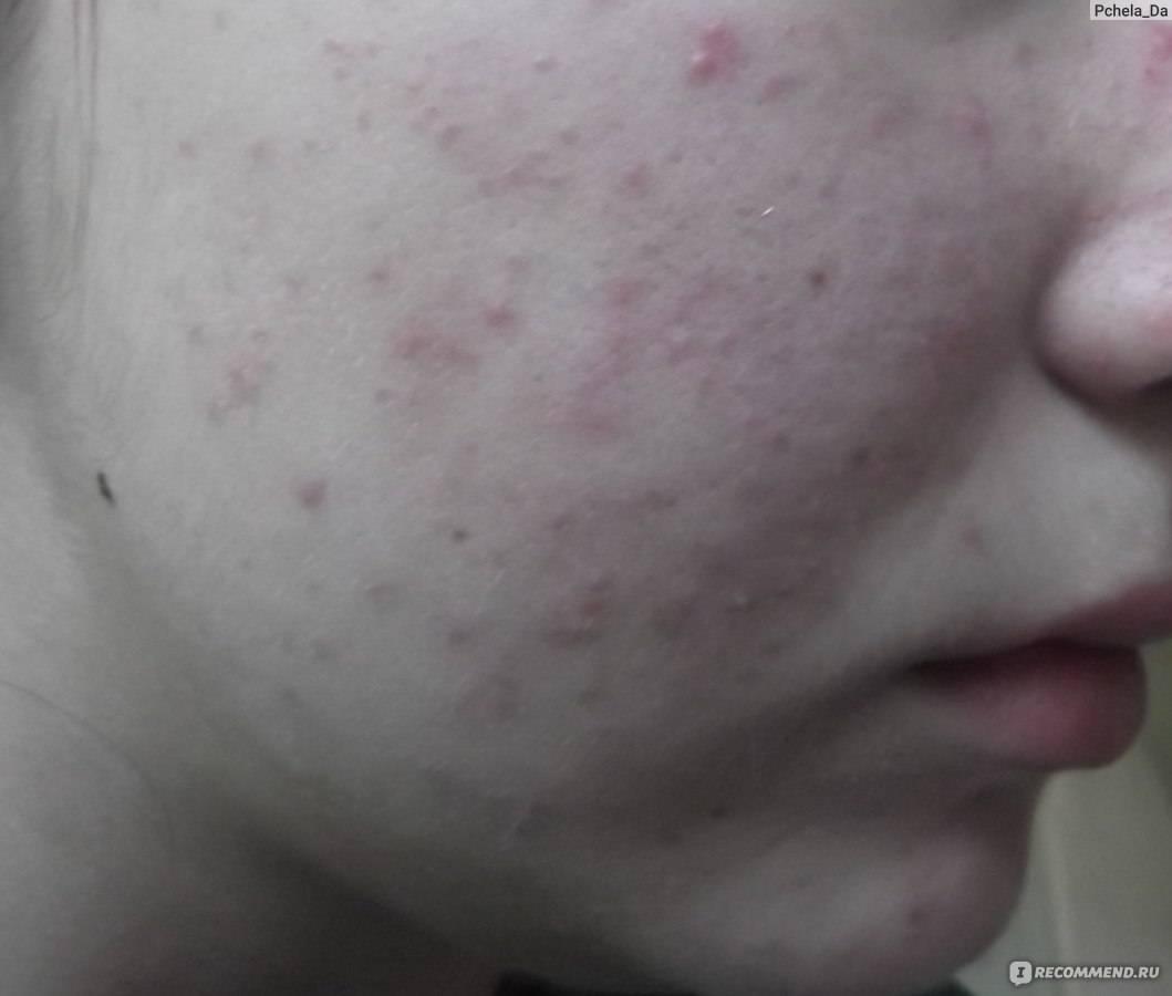 Как можно почистить лицо от прыщей в домашних условиях?