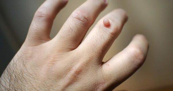 Причины появления бородавок на руках и способы борьбы с ними