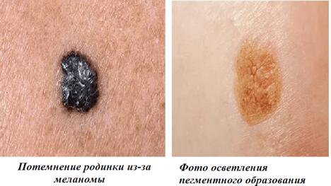 Как выглядит меланома и как ее лечить