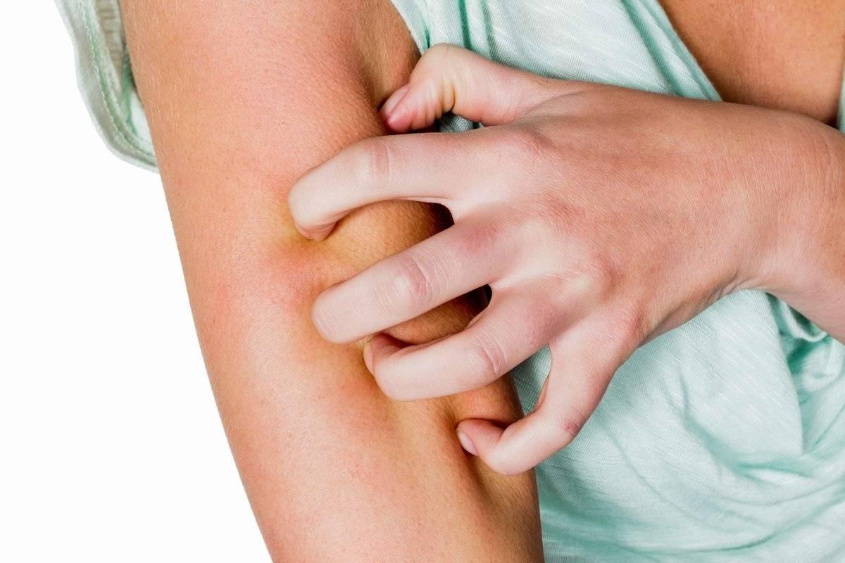 Лекарственная аллергия: симптомы и лечение