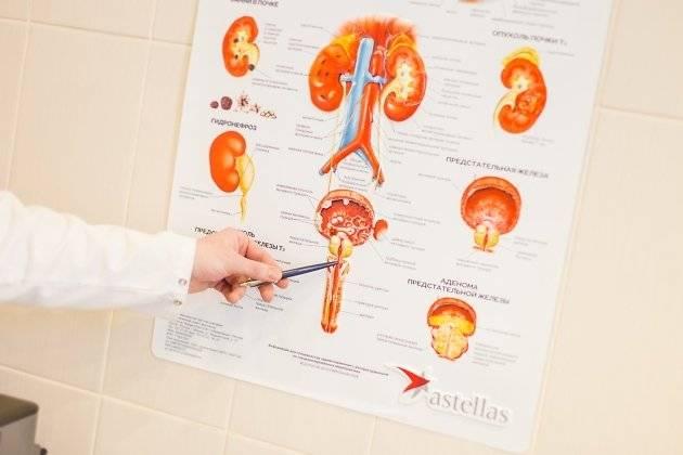 Продолжительность жизни при раке предстательной железы 1 и 2 степени