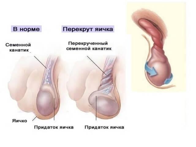 Почему болит правое яичко у мужчин: возможные заболевания и их лечение