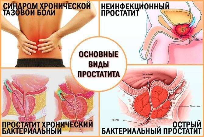 Чем лечить гонорею у мужчин народными средствами