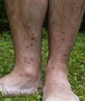 После купания в реке появилась сыпь, что делать? симптомы, диагностика, профилактика и лечение аквагенной крапивницы