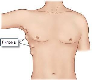 Липома - причины возникновения и методы лечения