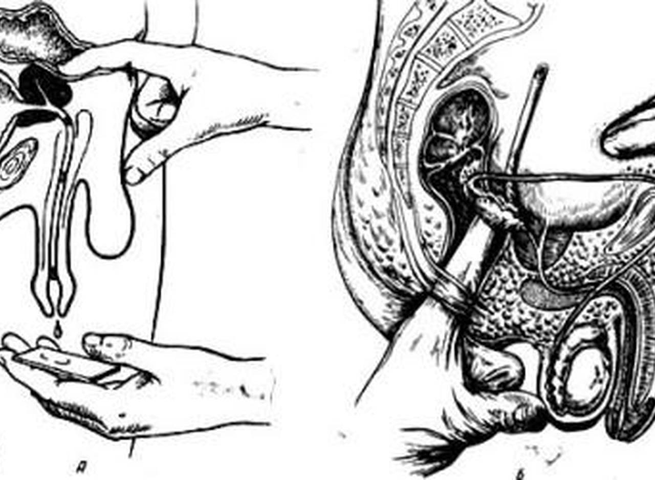 Как делать самостоятельно внешний или наружный массаж простаты