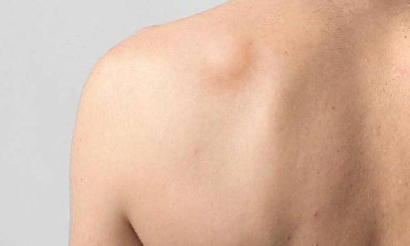 Почему возникает шишка в паху у женщин? выявляем проблему с помощью симптомов