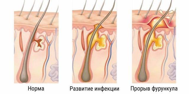 Внутренний фурункул на груди