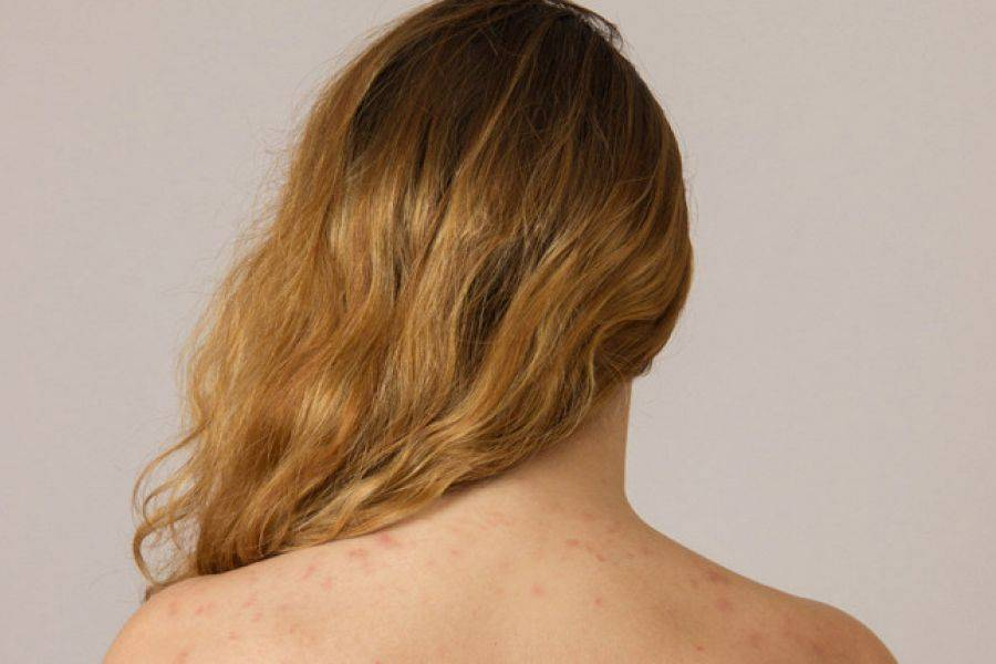 Акне на спине