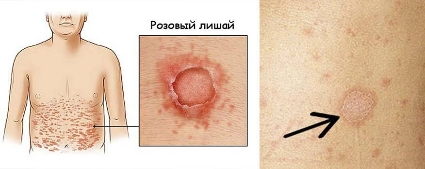 Коричневые пятна в паху у женщин и мужчин
