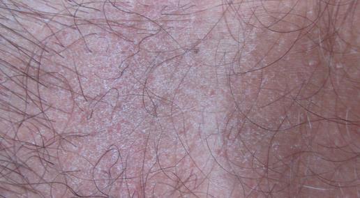 Красная сыпь на лобковой части – причины и лечение высыпаний в интимной зоне