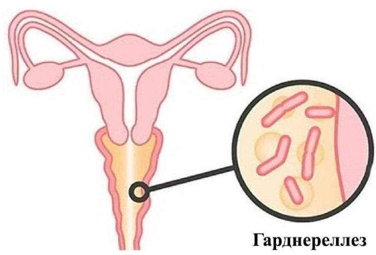 Откуда берется гарднерелла у женщин и как она проявляется? лечение и профилактика