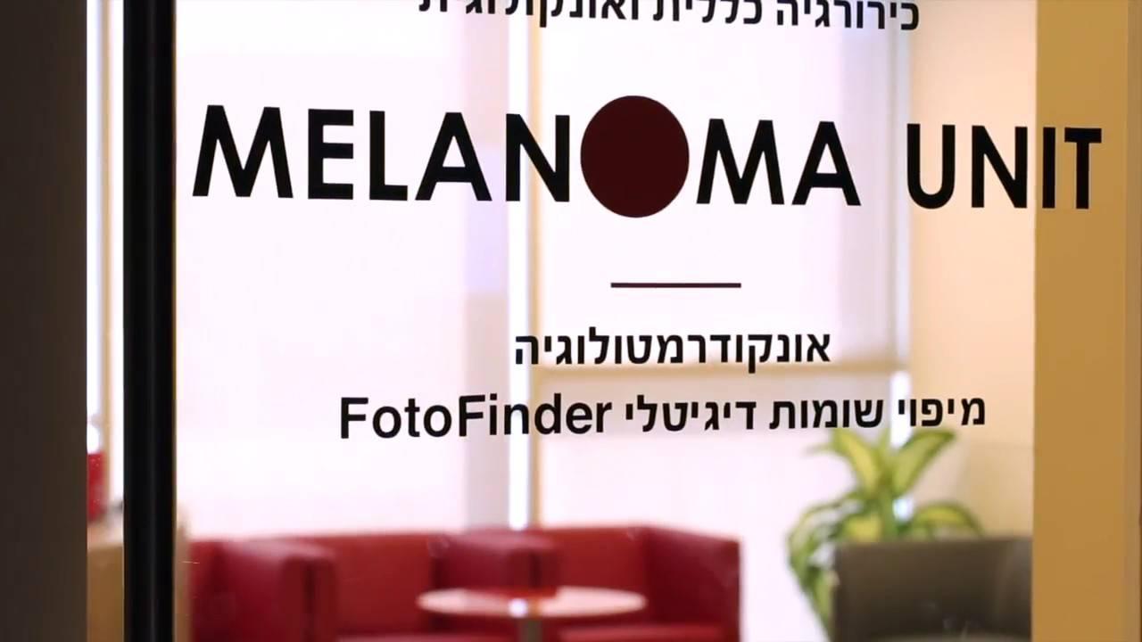 Характеристика меланомы кожи