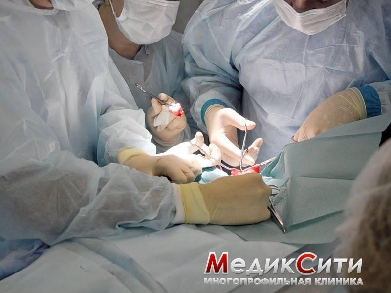 Ход радикальной простатэктомии и реабилитация после операции