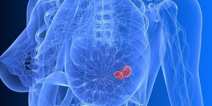 Антицеллюлитный крем: помогает ли? как действует?