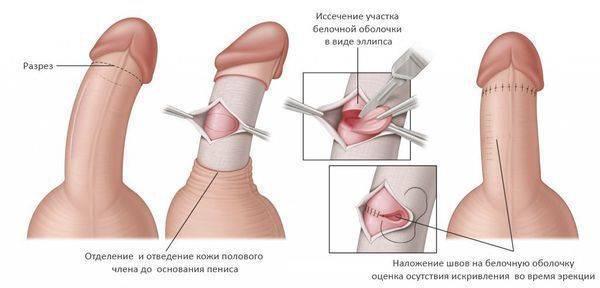 Заболевания полового члена у мужчин и мальчиков: причины, симптомы, лечение