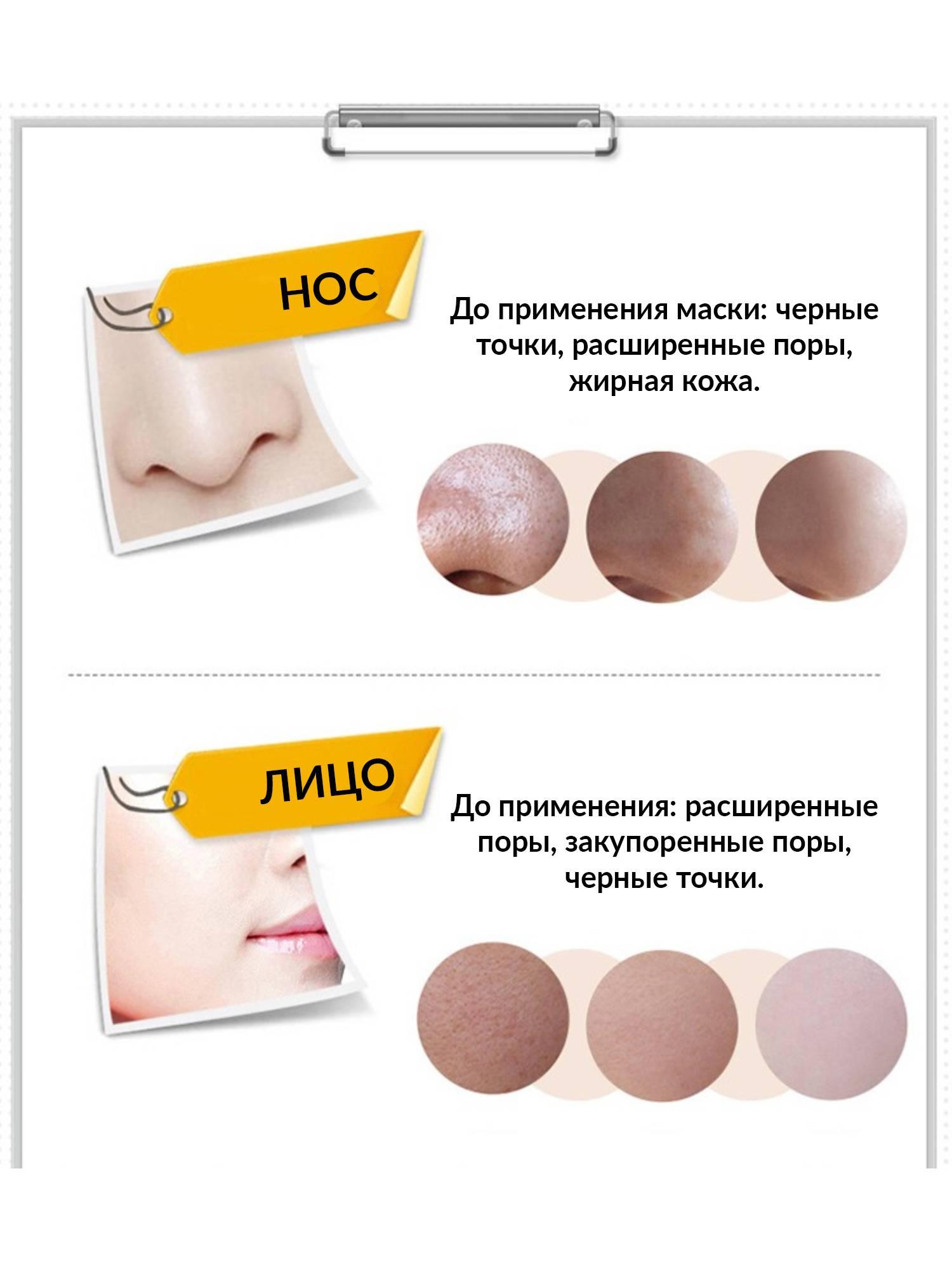 Домашние маски с активированным углём для лица: эффективное очищение кожи и устранение чёрных точек