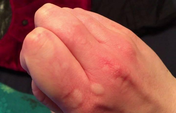 Причины появления прыщей при аллергии на различных участках тела у взрослых и детей