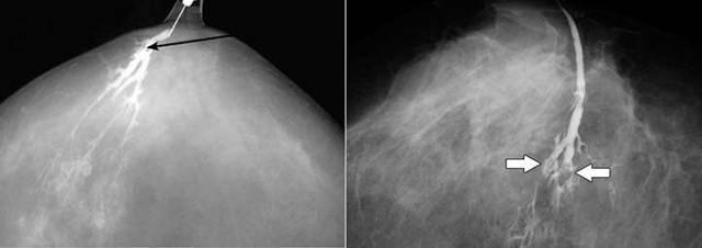 Как быстро папиллома перерастает в рак