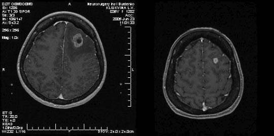 Обзор онкологических заболеваний метастазы рака и меланомы в головной мозг
