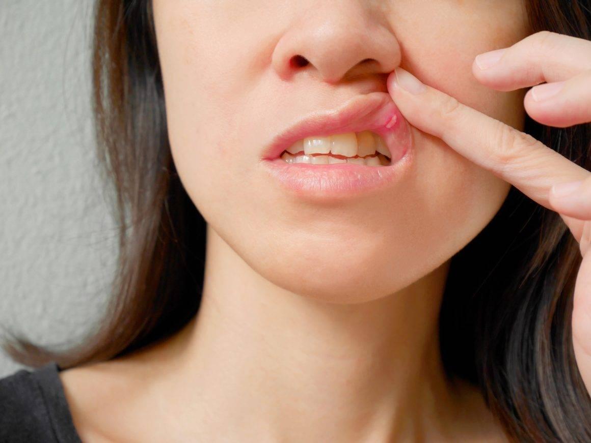 Прыщи вокруг рта и на подбородке причины, как лечить
