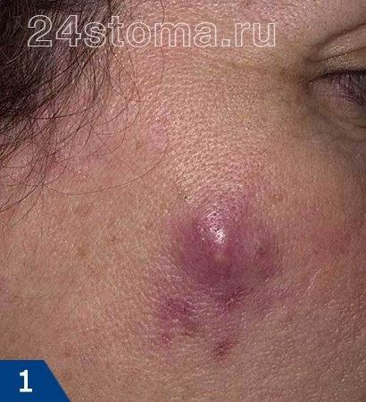 Фурункул на попе — лечение, причины, симптомы