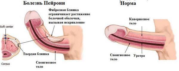 Травмы полового члена и органов мошонки. причины, симптоматика, диагностика и лечение травмы полового члена и органов мошонки