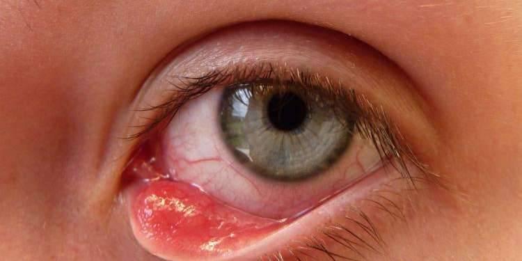 Появление ячменя на глазу и как вылечить за один день