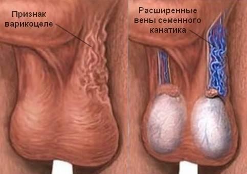 Почему болит яичко после операции варикоцеле? восстановление в послеоперационный период