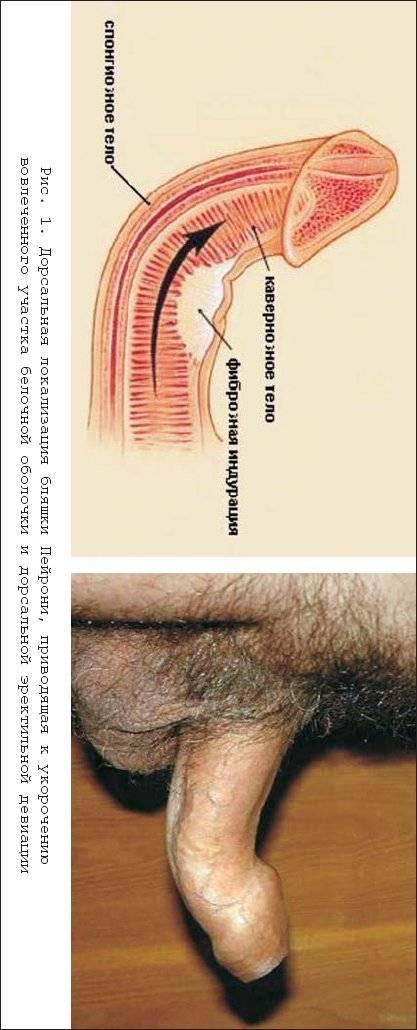 Боль в головке члена у мужчин: причины, диагностика заболеваний и лечение