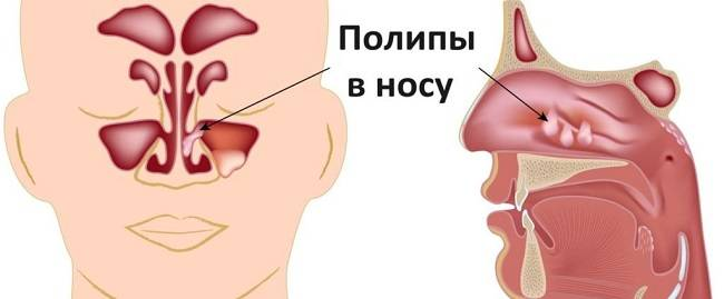 5 способов удалить папиллому в носу оперативными методами