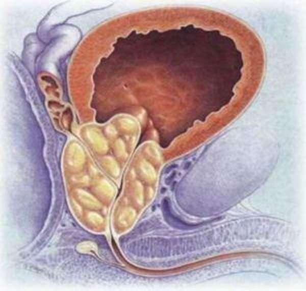 Топ-28 причин быстрого семяиспускания у мужчин и способы предотвращения проблемы