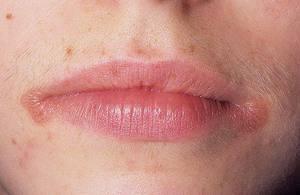 Из-за чего образовываются заеды в уголках рта и как их лечить