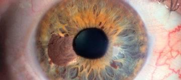 Меланома глаза
