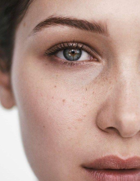Чистая кожа – как убрать покраснение от прыщей быстро?