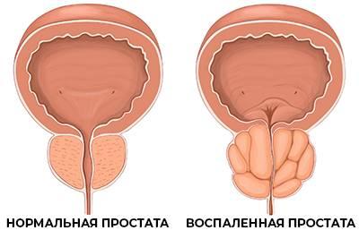 Современные методы диагностики аденомы предстательной железы