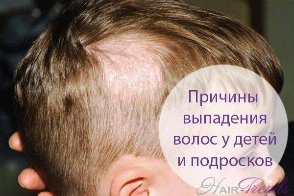 Почему выпадают волосы от нервов и как это остановить + методы лечения