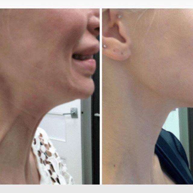 Эффективное средство от рубцов после прыщей на лице и теле