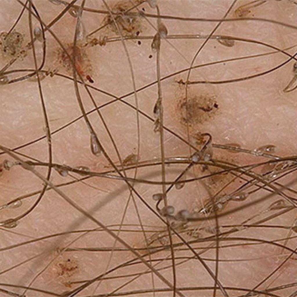 Лобковый педикулез: симптомы и лечение