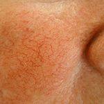 купероз возле носа