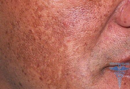 пигментные пятна на лице от загара