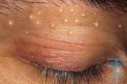 Пузырьки на члене у мужчин фото возможные болезни лечение