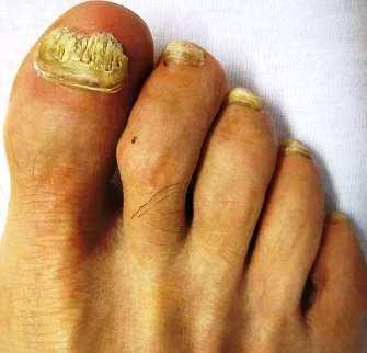 Народные средства при лечении ногтевого грибка