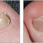удаление поврежденной части ногтя