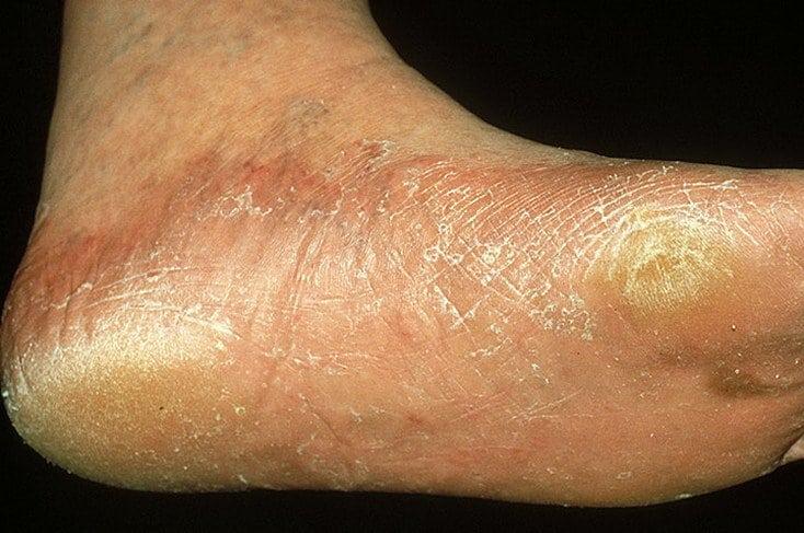 Лечение толстого ногтя народными средствами