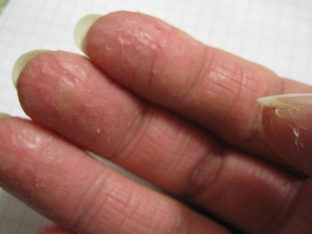 кожа сохнет и трескается на руках